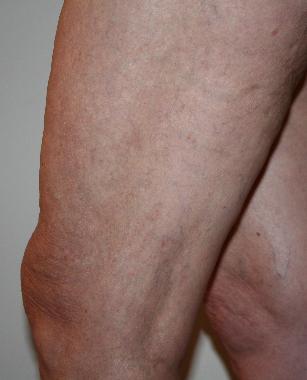 varicose veins - after