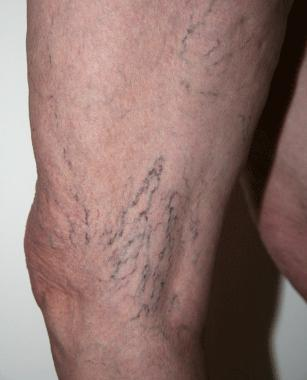 varicose veins - before