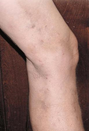spider vein treatment - after